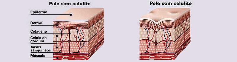 Esquema da pele humana mostrando a formação da celulite