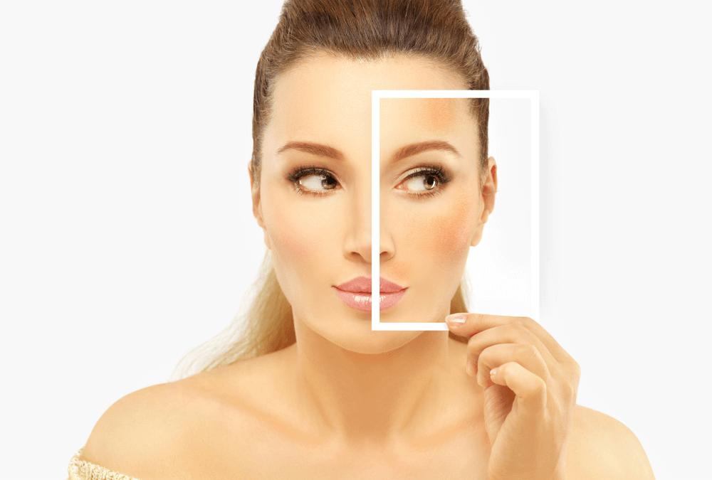 Como tratar manchas na pele