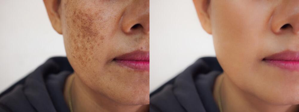 Foto de rosto de paciente mostrando antes e depois do tratamento de melasma
