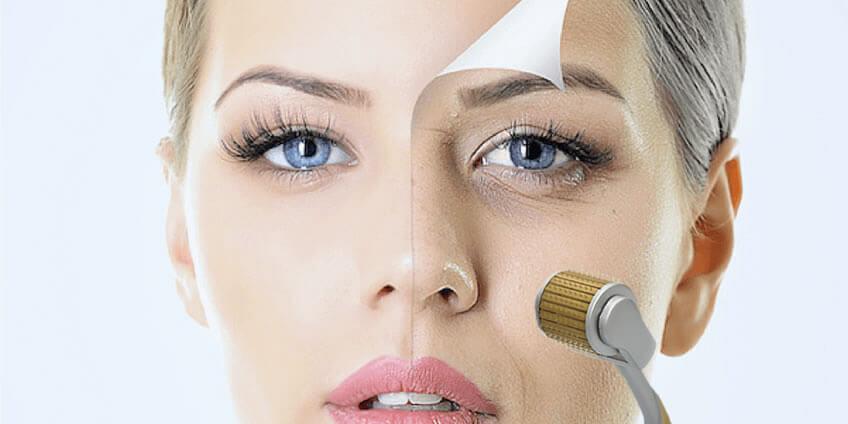 Comparação de fotos antes e depois do tratamento de microagulhamento